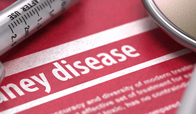 What You Should Know About Kidney Disease
